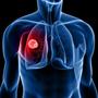 लंग कैंसर और आयु संभाविता
