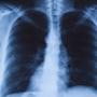 How to Prevent Pneumonia?