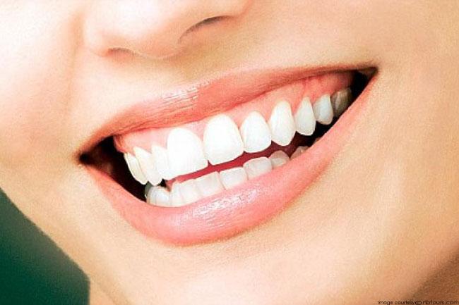 Keep your Teeth White