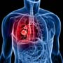 <strong>व्यायाम</strong> घटाता है आंत के कैंसर का खतरा