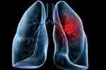 एडेनोकार्सिनोमा कैंसर के साथ कैसे जियें