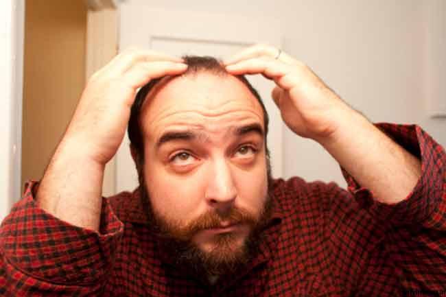 कब होती है बाल झड़ने की समस्या