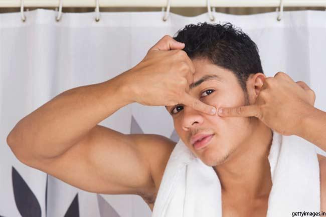पुरुषों में मुंहासों की समस्या