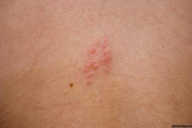 Improves Shingles-associated Pain