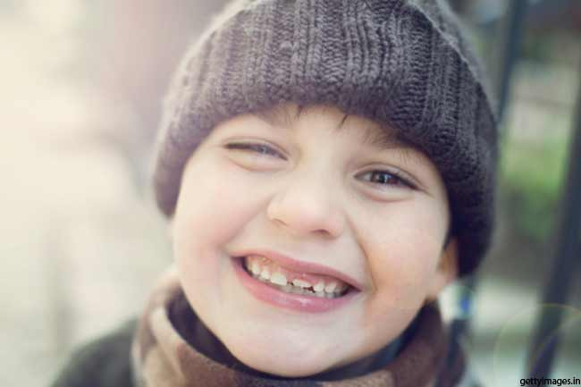 बच्चों के दांत