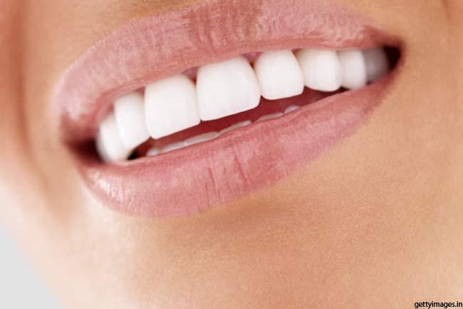 दांत को मोतियों सा चमकाएं