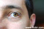 Blood Vessels in Eye Linked with IQ