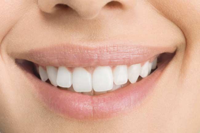 दांतों के पीलेपन से छुटकारा