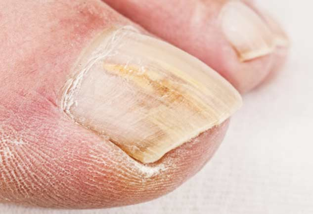 Your Nails can Tell About Your Overall Health