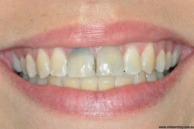 बदरंग दांत