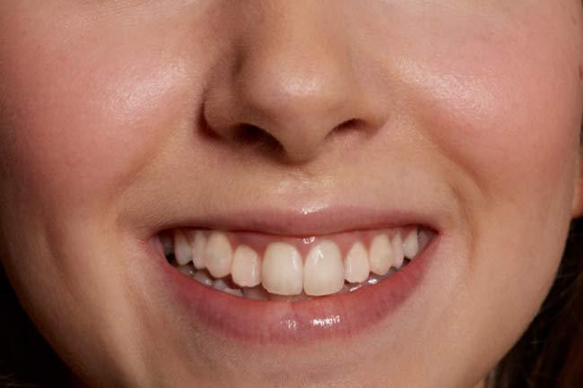 बदरंग दांतों के लिए उपचार