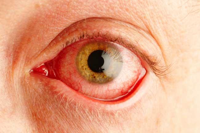 आंखों की एलर्जी