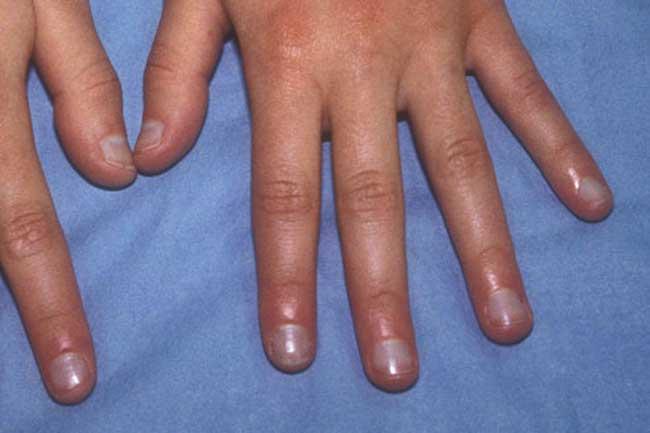 Bluish Nails