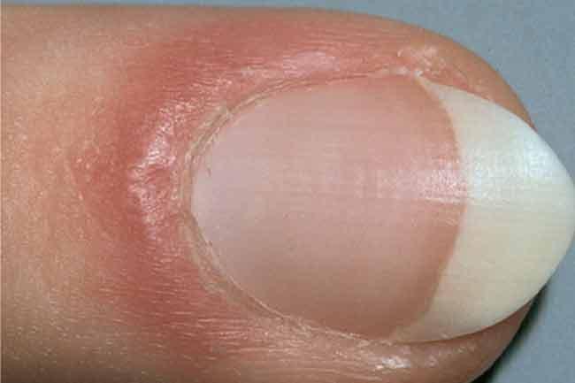 Puff in Nail Fold