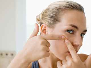 Tips to Hide those Unsightly Pimples Instantly