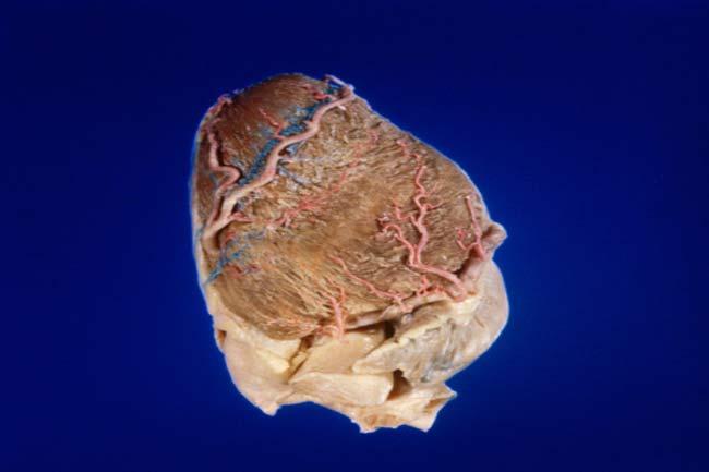 कोरोनरी धमनी विच्छेदन (कोरोनरी आर्टरी डिसेक्शन)