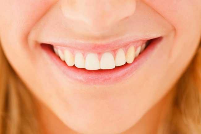 दांतों की समस्या और बीमारियां