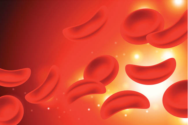 Myths associated with Blood Clots