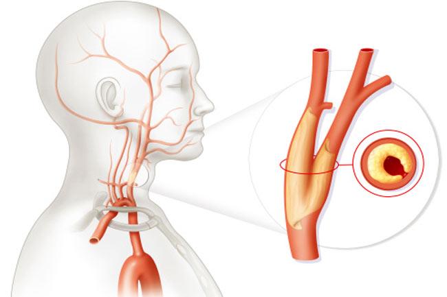 कैरोटिड धमनी रोग (Carotid Artery Disease)