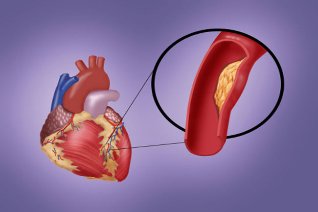 कोरोनरी धमनी रोग (Coronary Artery Disease)