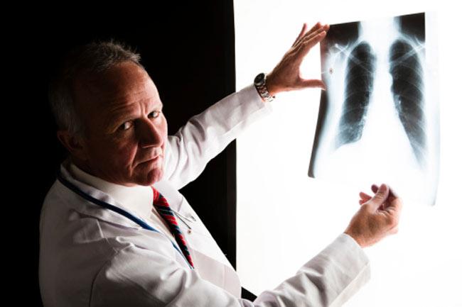 पल्मोनरी इम्बोलिज्म (Pulmonary Embolism)