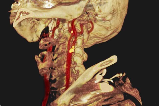 Artery: Carotid Artery Disease