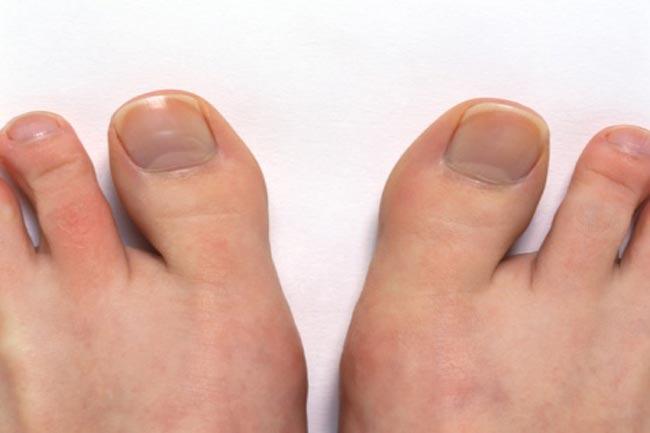 पैरों के नाखून की समस्या