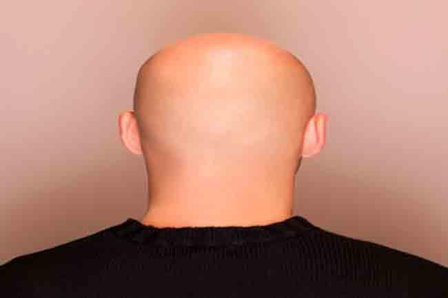 एलोपेसिया यूनिवर्सालिस (Alopecia Universalis)