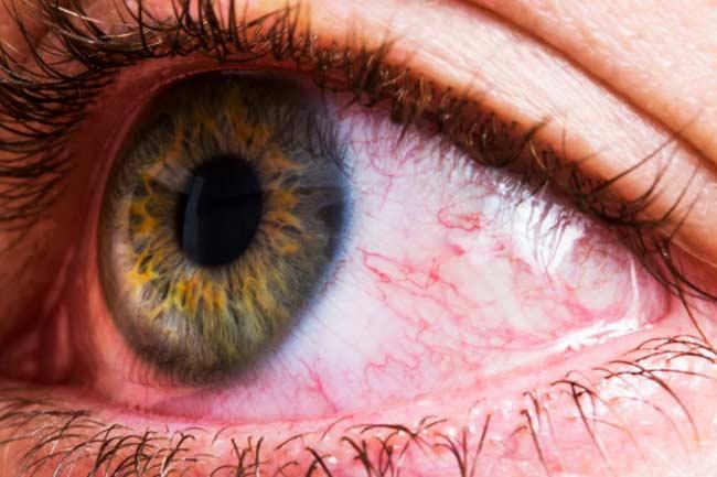 आंखों में लालिमा