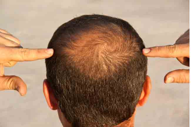 Hair diseases and their treatment beauty personal care hair problems urmus Choice Image