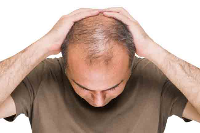 Hair diseases and their treatment beauty personal care treating alopecia universalis urmus Choice Image