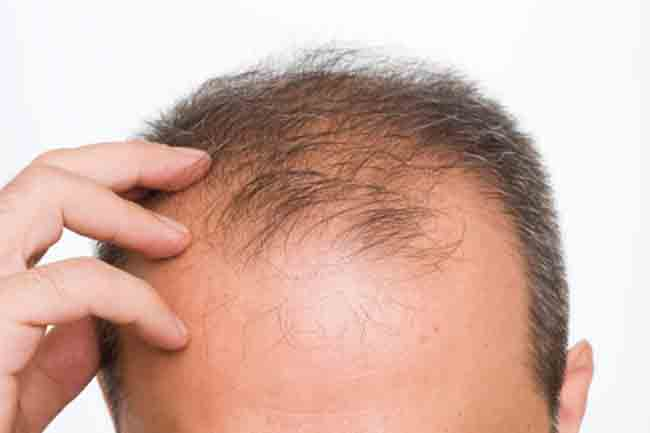 Hair diseases and their treatment beauty personal care telogen effluvium urmus Choice Image
