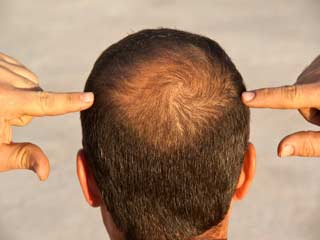 Hair Diseases and their Treatment