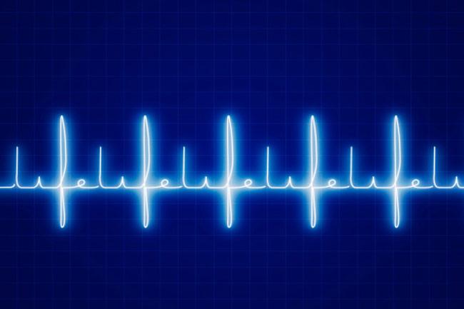 सामान्य हृदय गति