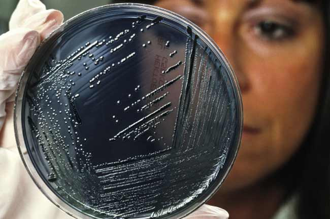 Don't Care About Bacteria?