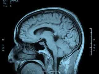 What is the Prognosis of Pseudotumor Cerebri?
