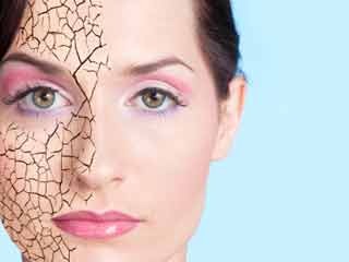 Easy Home Remedies for Treating Dry Skin in Winters