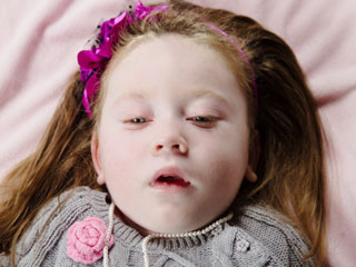 What is Krabbe Disease?