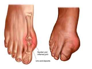 पैर व टखनों में सूजन के कारण