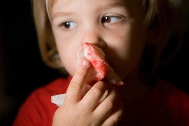 Nosebleed Causes
