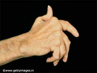 Rheumatoid arthritis and pain
