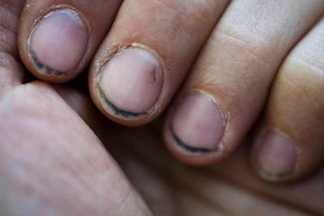 Infections in Nail