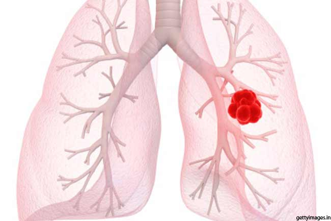 लंग कैंसर से बचाव