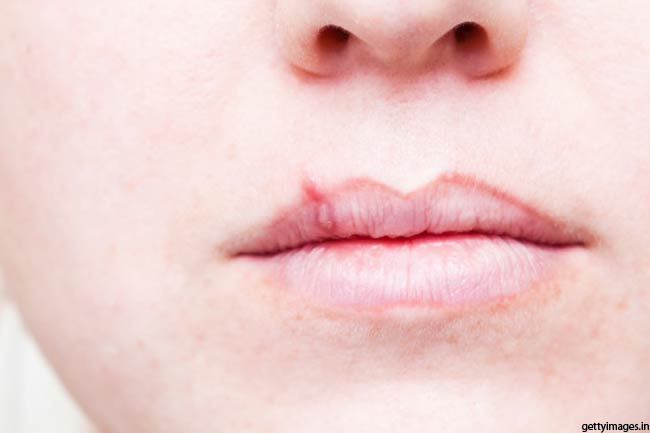 Herpes and Shingles