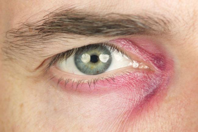 आंखों की चोट दूर करें
