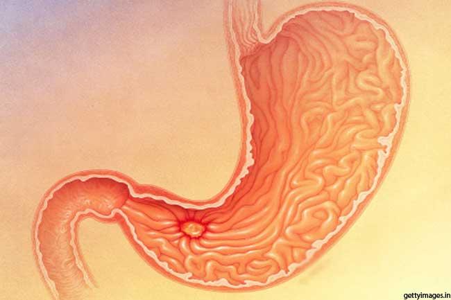 पेट के अल्सर का इलाज