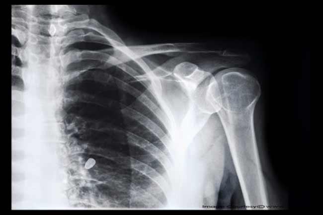 हड्डियों से जुड़ा तथ्य