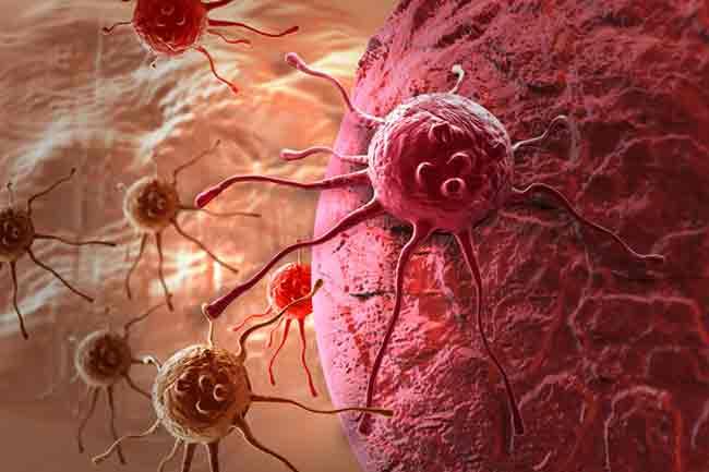मानव पेपिलोमा वायरस (एचपीवी) इंफेक्शन