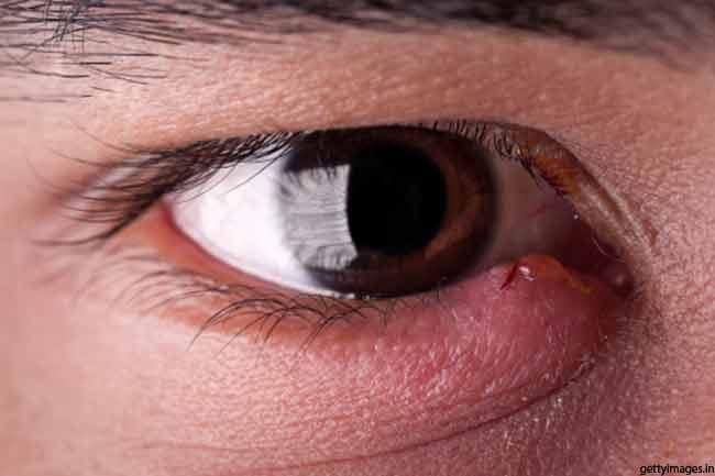 आंखों की सूजन के घरेलू उपाय
