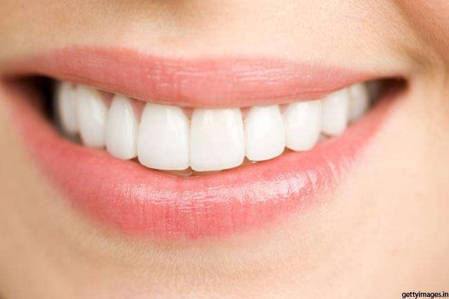 बरकरार रखें दांतों की सफेदी